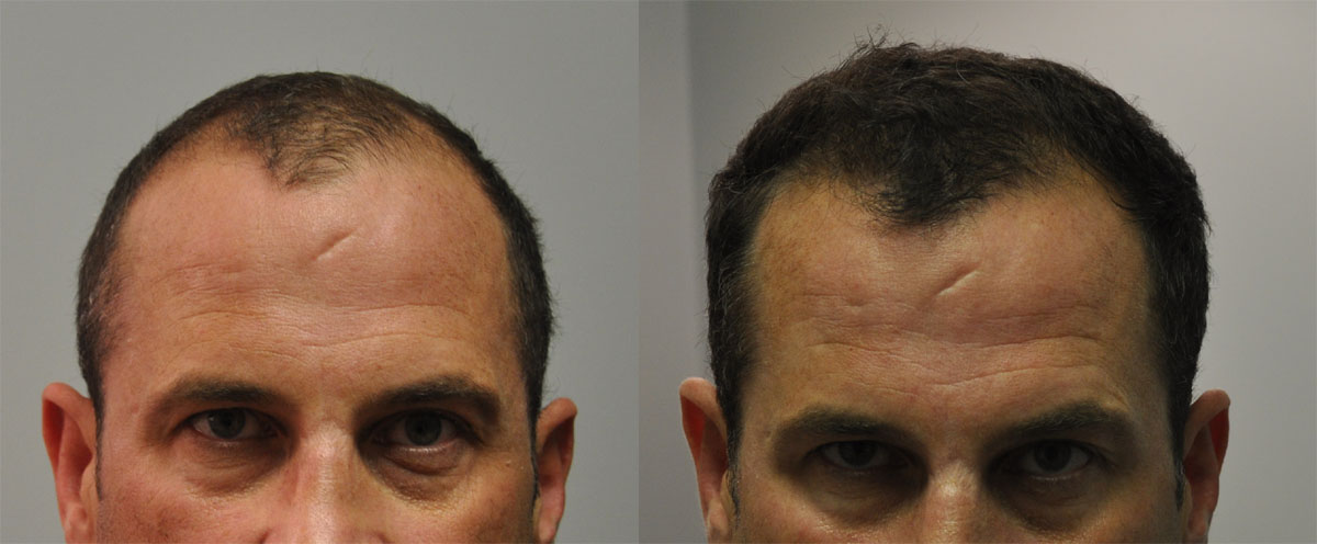 Before and after 1000 FUE hair grafts. frontal view.