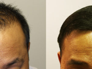Hair Transplant Case Study – 1677 Grafts – Combination FUT and FUE Procedure